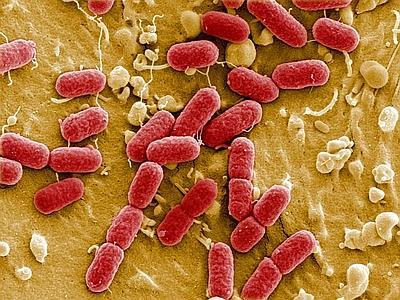 Photo of Oms lancia allarme: super batteri devastanti, vecchie infezioni tornano a uccidere