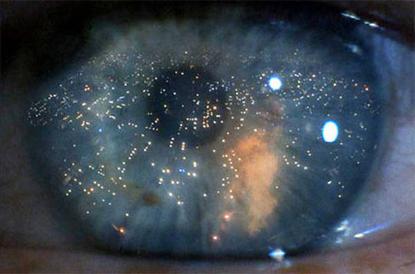 Photo of Dall'esame della retina, la diagnosi precoce dell'Alzheimer