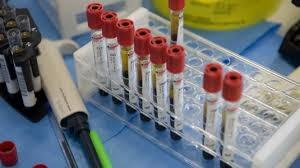 Photo of Tumori: per malattie sangue è l'era delle cure di precisione