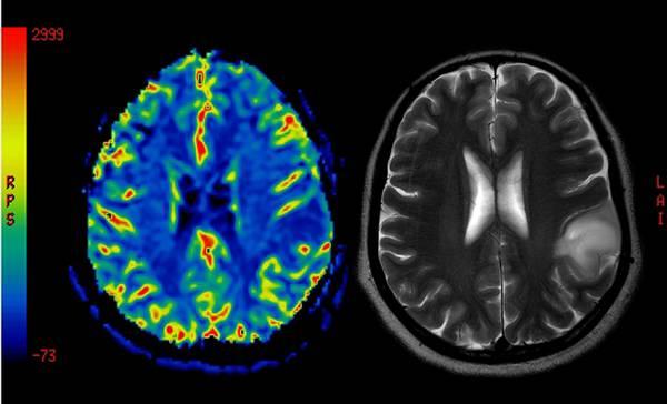 Photo of Potrebbe essere l'aspirina liquida la nuova arma contro il tumore al cervello