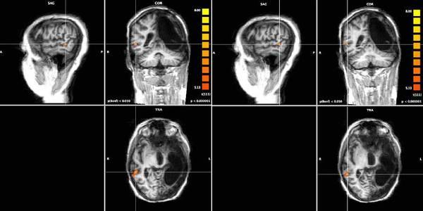 Photo of Medicina – Dalla ricerca italiana, la riattivazione del cervello per recupero della parola