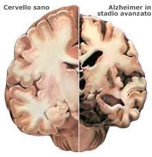 Photo of Alzheimer –  Ricerche incoraggianti