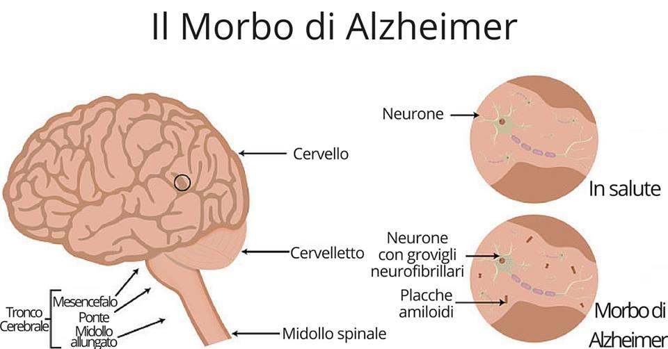Photo of Non confondere Alzheimer con 'scherzi' della memoria